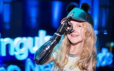 Tilly Lockey, who has a 3D printed prosthetic hand